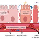 Food Sensitivity Testing & IBS